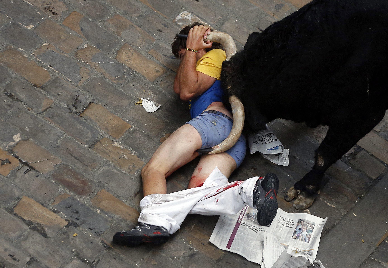 Фото людей пострадавших от животных 3